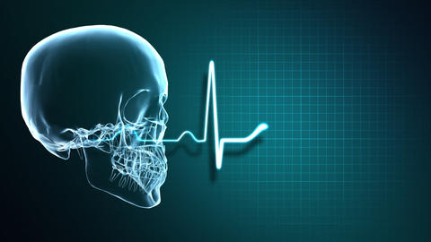 X-Ray Skull and Heart Monitor Stock Video Footage