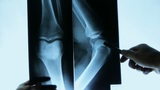 doctors study arm,leg & palm joints X-ray film for analysis Footage