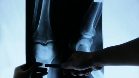 doctors study arm,leg & palm joints X-ray film for... Stock Video Footage