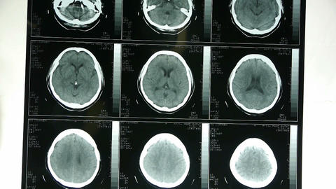 Doctors study skull brain X-ray film for... Stock Video Footage