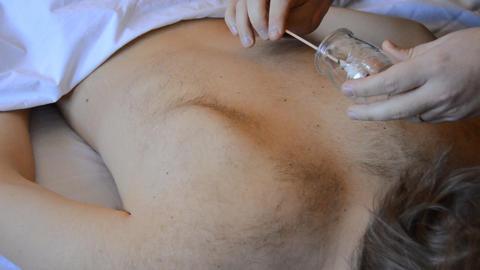 Oriental Traditional Healing Procedure Footage