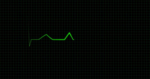 Electrocardiogram screen Animation