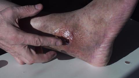 man rubs ointment injured leg Live Action