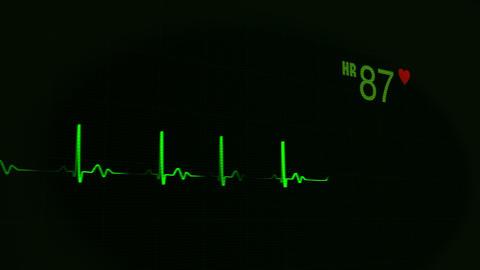 Heartbeat, Pulse, EKG.v.2 Animation