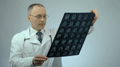 Doctor looking at MRI brain scan, satisfied with patient's positive dynamics Footage