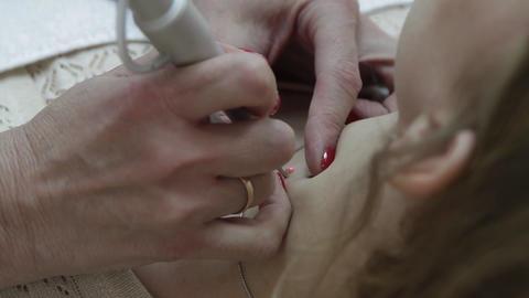 laser removal of moles Footage