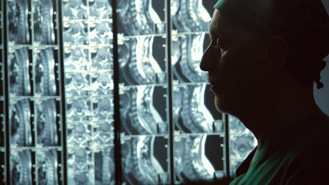 Serious male therapist looking at MRI scans, rubbing chin, incurable disease Footage