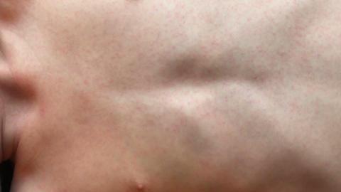 Body of a boy with an allergic reaction Footage