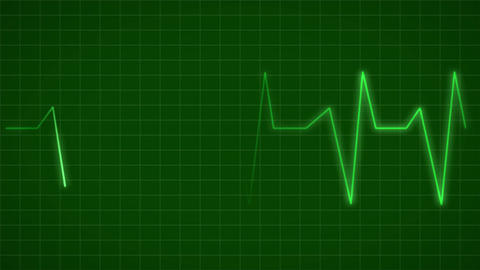 ECG Electrocardiogram Display Heart Rate Beat Pulse Looped animated background Animation