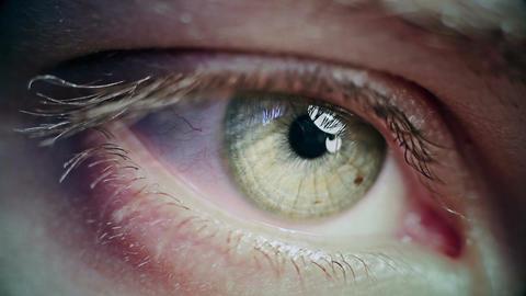 Eye Iris 7 Footage