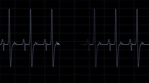 Heartbeat Monitor Line stock footage