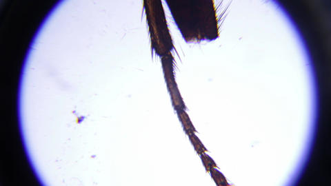 Legs of the housefly seen under a microscope 29 Footage