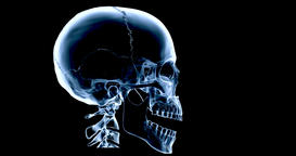 An animated X Ray of a human skull talking, multicoloured version Animación