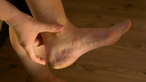 Closeup of middle aged woman leg with arthritis doing self relaxation massage re Footage