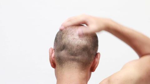 bald man using hair restorer ビデオ