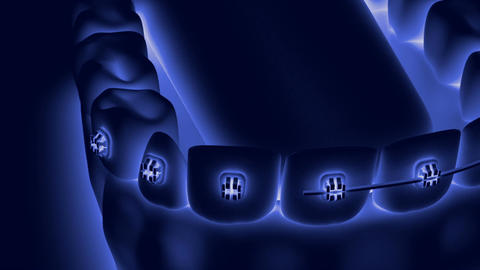 Animation dental brackets5 Animation