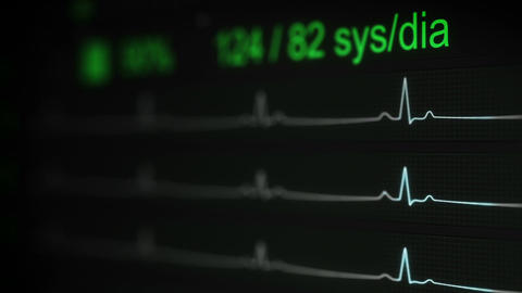 ECG test medical Concept seamless loop animation with DOF Animation