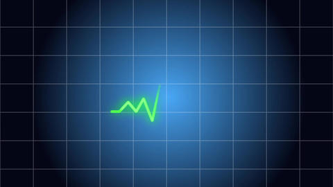 electrocardiogram Medical grid background image Blue motion CG動画