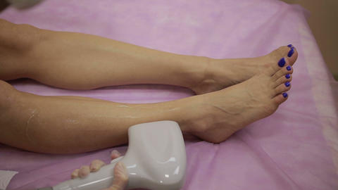 Laser hair removal procedure on female legs Live Action