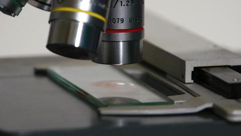 Microscope exam Footage
