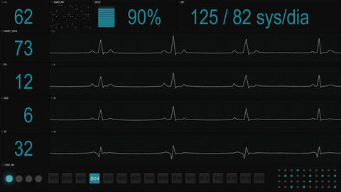 Medical display with blue lines of ECG loopable animation Animation