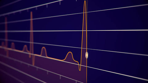 Heart beat pulse. Orange line on blue background. slow motion Animation