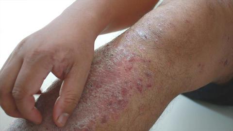 4K Close up shot hands of man scratching skin rash Dermatitis psoriasis patient Footage