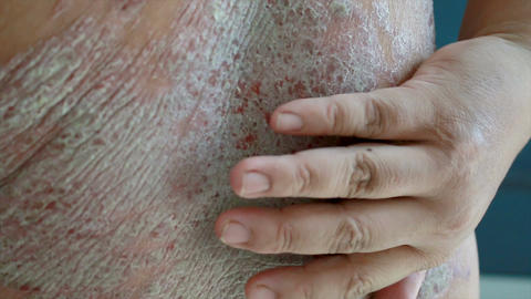 4K Close up shot hands of man scratching skin rash Dermatitis psoriasis patient Footage