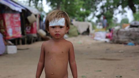 injured kid in asian slum Stock Video Footage