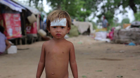 injured kid in asian slum Stock Video Footage