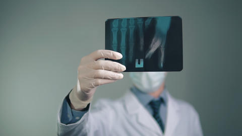 medical preparations, X-ray in the hands of the doctor, protective gloves on the Footage