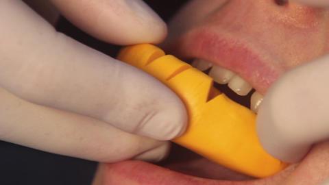 Taking dental imprint Live Action