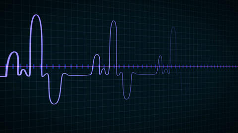 Looping heart rate monitor ビデオ