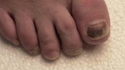 diseased nails Footage