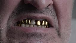metal teeth, mouth, close-up Footage