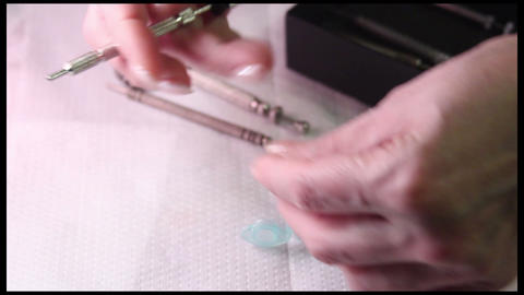 Acupuncture (medicine): Su Jok needle is inserted in a hand Footage
