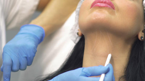 Beautician marks neck zone for lifting skin Live Action