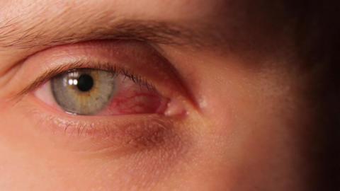 Sick Red Human Eye Archivo