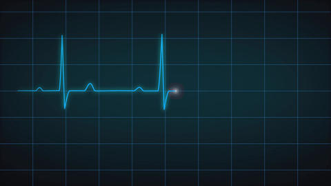 EKG Heart Monitor Flatline After Effects Template