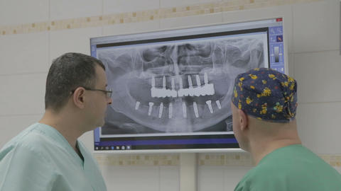 Closeup Of Two Doctors With X-ray Prints stock footage