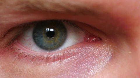 Close-up of a Male's Eye Live Action