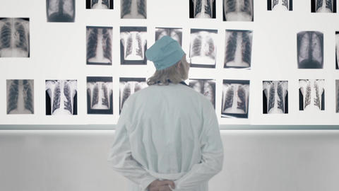 Male Doctor Looking At X-Ray Footage