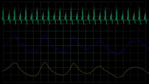 simulation of heart rate medical machine GIF