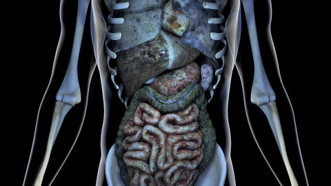 4K Sick Internal Organs in a Transparent Human Body Anatomical 3D Animation 1 Animation