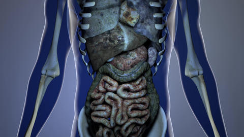4K Sick Internal Organs in a Transparent Human Body Anatomical 3D Animation 3 Animation