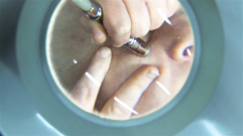Beautician who cleans a client's face seen through lens with high magnification  Footage