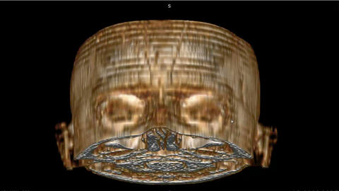 CT scan with 3D image of normal human skull for exam 애니메이션