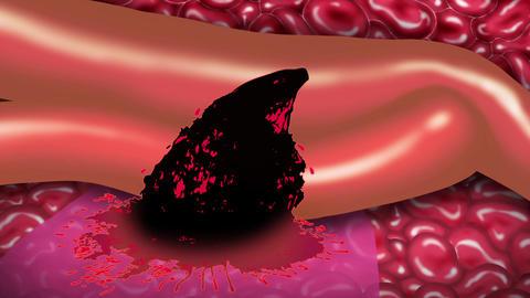 血管の破裂 CG動画