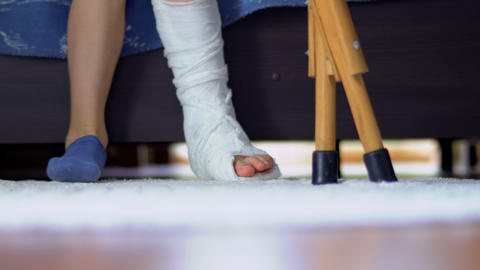 Child with broken leg and crutches Footage