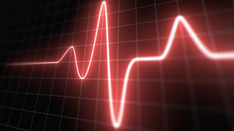 Stylized EKG Normal, Red Animation